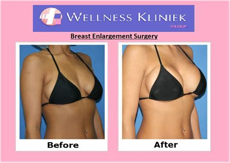affordable breast enhancement picture 2