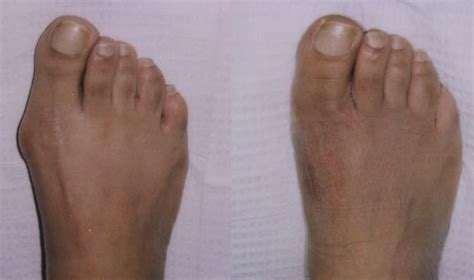 are you put to sleep for bunion surgery picture 14