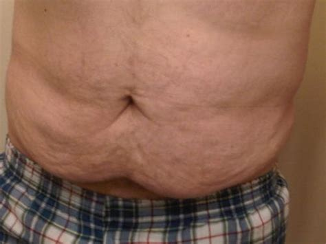 flabby skin picture 3