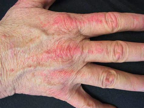 skin infection on knuckle picture 7