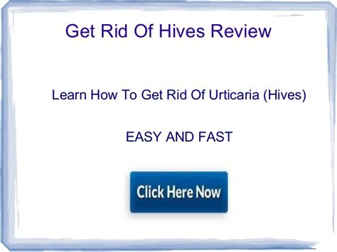 get rid of hives picture 2