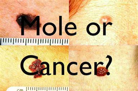 what is skin cancer picture 3