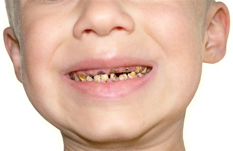 children's teeth pictures picture 7