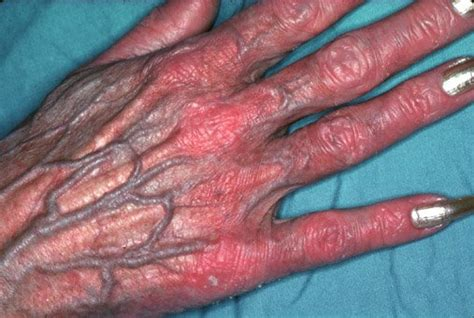 hgh charcot marie tooth picture 1