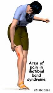 are side sches & leg cramps symptoms of picture 7