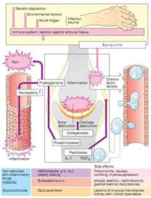 gamot sa rheumatoid arthritis treatment picture 10