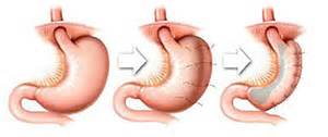 gastrointestinal surgery for weight loss picture 3