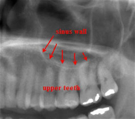 does sinus infection cause face and teeth pain picture 5