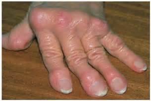 charlotte arthritis pills mexico picture 1