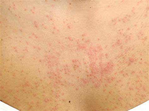 yeast infection and folliculitis picture 6
