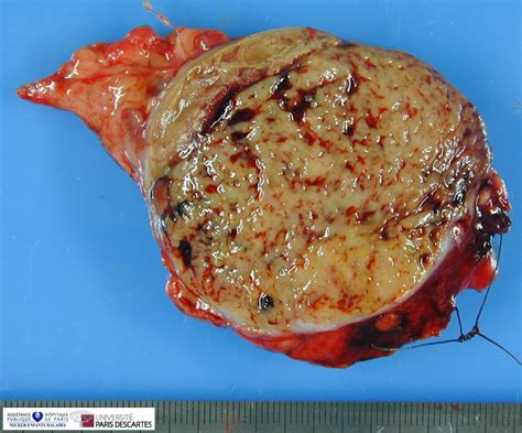 colon tumor picture 15