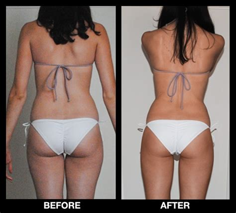 cellulite loss with weight loss picture 9