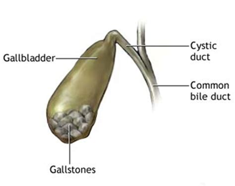 free gall bladder remedies picture 15