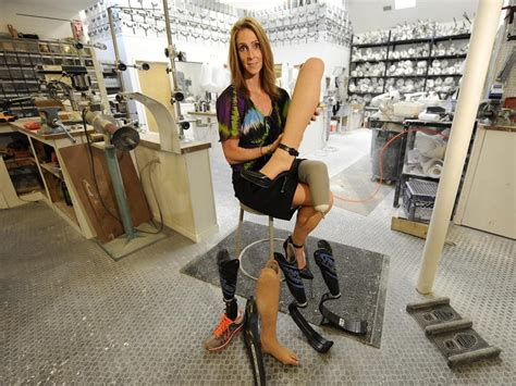 amputee women prosthetic leg picture 5