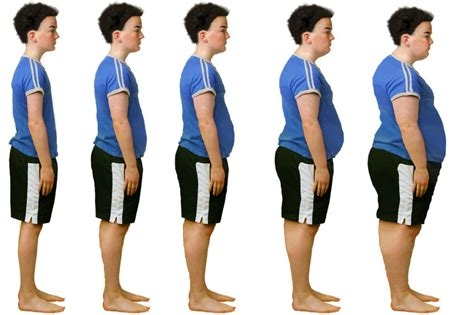 Prescription drugs for weight loss picture 6
