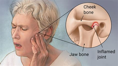 jaw joint pain picture 5