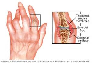 dieases and treatment for tissues and joints picture 6