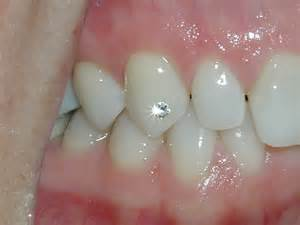 dimond crown teeth picture 10