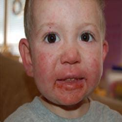 children with genital herpes picture 5