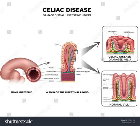small bowel disease picture 10