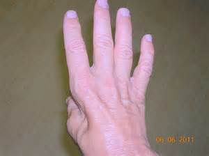 Muscle deterioration picture 7