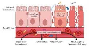 digestion system of hag picture 2