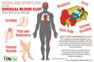 10 signs of blood clot picture 11