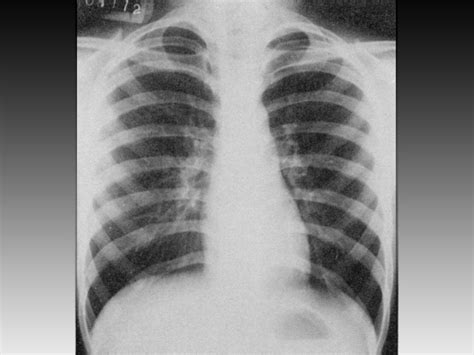 sensitivity and specificity of chest xray in diagnosing bacterial pneumonia picture 14