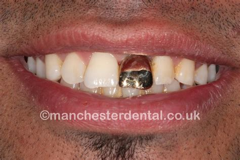 cheapest wholesale price on gold teeth picture 13