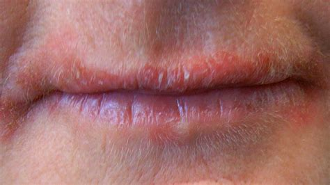 alleegic reaction on lips pictured picture 18