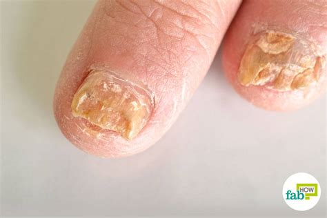 what to use for nail fungus picture 12