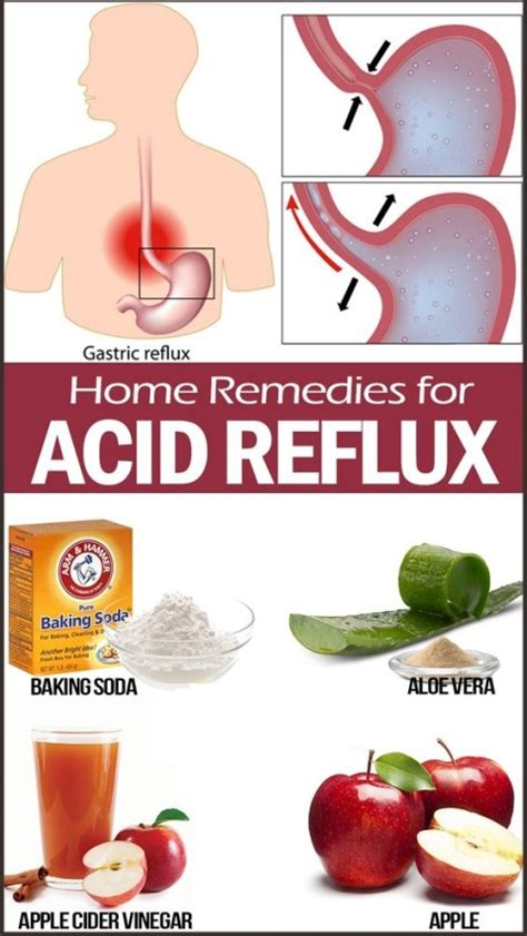 cure for acid indigestion picture 10