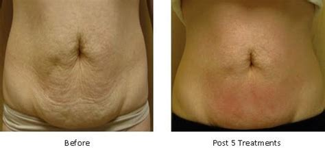 cellulite treatment new jersey picture 1
