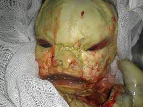 human skin deformities picture 5