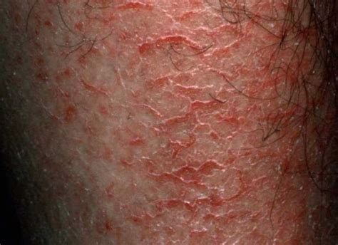 dry skin on picture 2