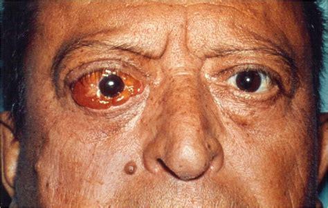 eye disease thyroid picture 3