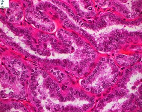 maria prelipcean thyroid cancer picture 10