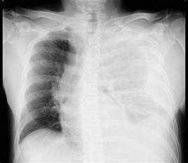 Sensitivity and specificity of chest xray in diagnosing picture 9