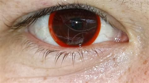contact lense ers getting bacterial infection in eyes picture 15