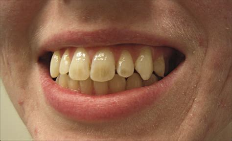 antibiotic side effects discoloring teeth picture 13