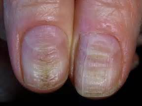vitamins for nail fungus picture 7