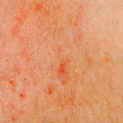 skin rash and leukemia picture 1