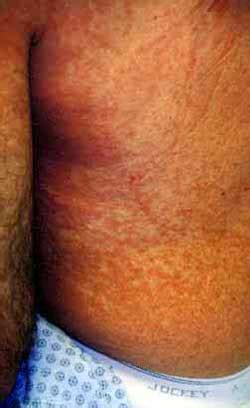 alergic skin reactoins to the sun picture 7