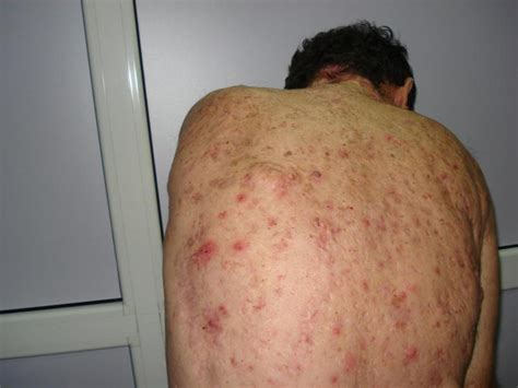 acne conglobata picture 1