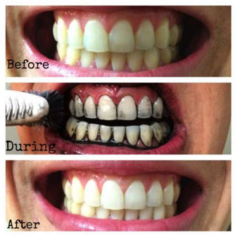 how much is it to whiten your teeth picture 2