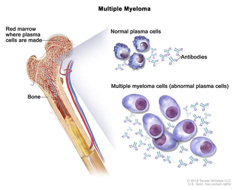 bladder myeloma picture 2
