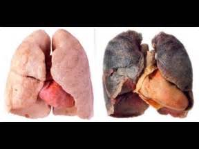 smoke damaged lungs picture 2