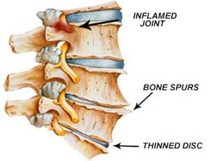degenrative joint diease in the spine picture 13