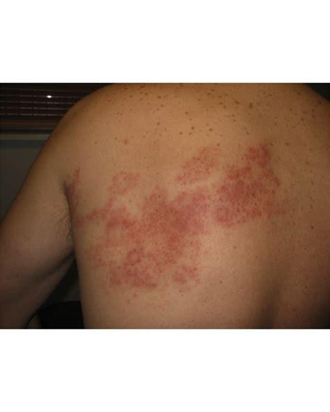 shingles fungal meningitis warts headaches picture 3