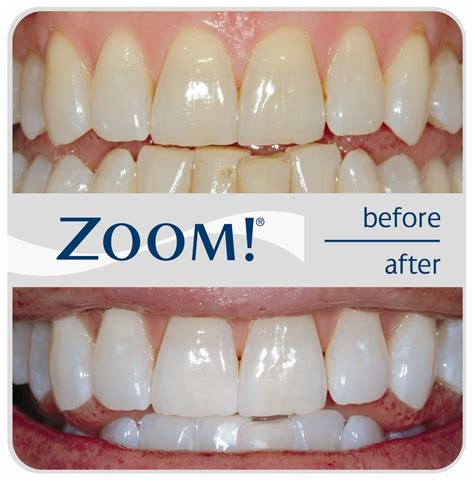 cost of teeth bleaching picture 2